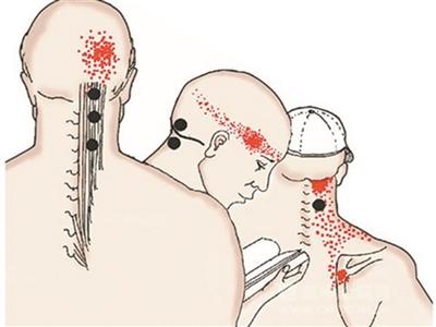 头疼部位及原因图解